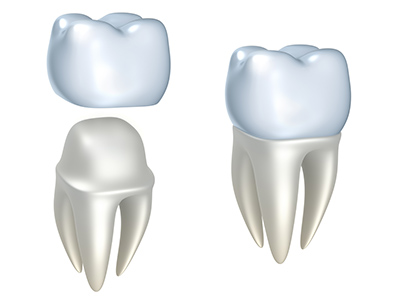 Understanding the Difference Between Dental Crowns And Bridges
