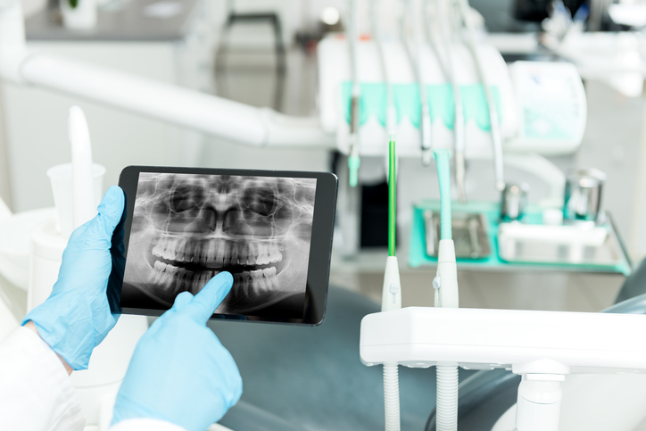 Our Technology | Dentist in Tulsa | Dental Implants